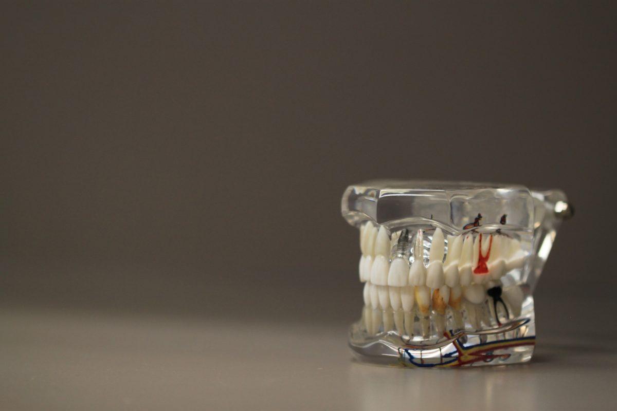 Zły sposób żywienia się to większe niedostatki w zębach oraz również ich utratę